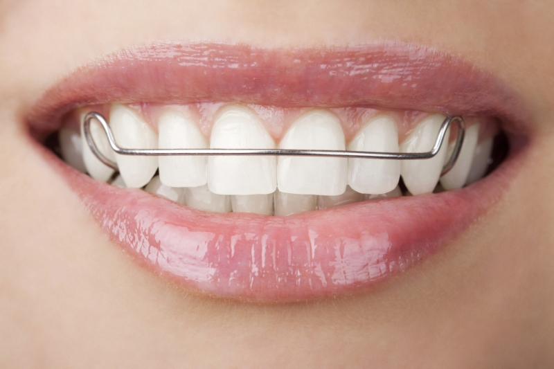 Retainer & Expander Instructions | Guildford Orthodontics